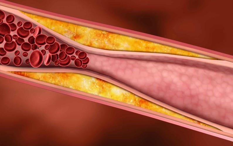 9 Ciri Ciri Kolesterol Tinggi dan Asam Urat yang Perlu Anda Ketahui