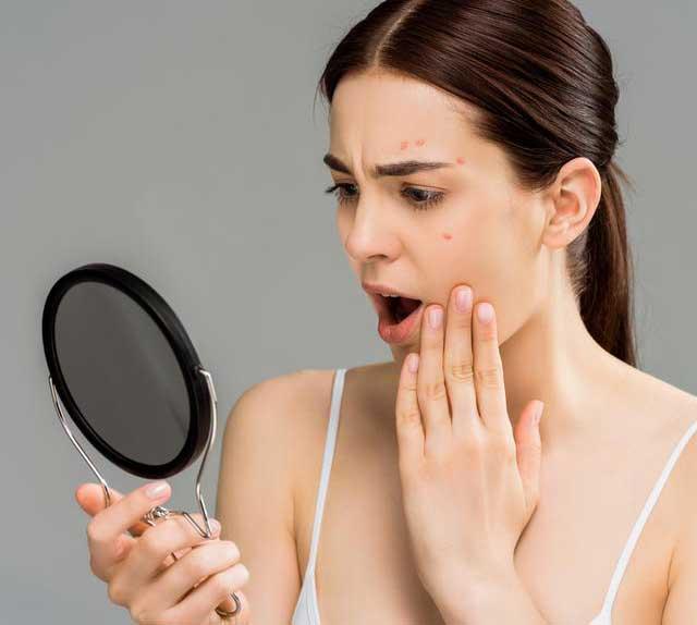 Cara Mengempeskan Jerawat Batu Tanpa Ke Klinik Kecantikan