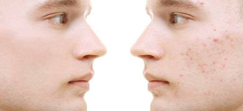 9 Bahan Alami Untuk Menghilangkan Bruntusan Di Wajah