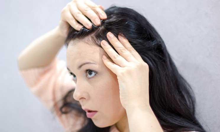 Penyebab dan Cara Mengatasi Jerawat di Kepala